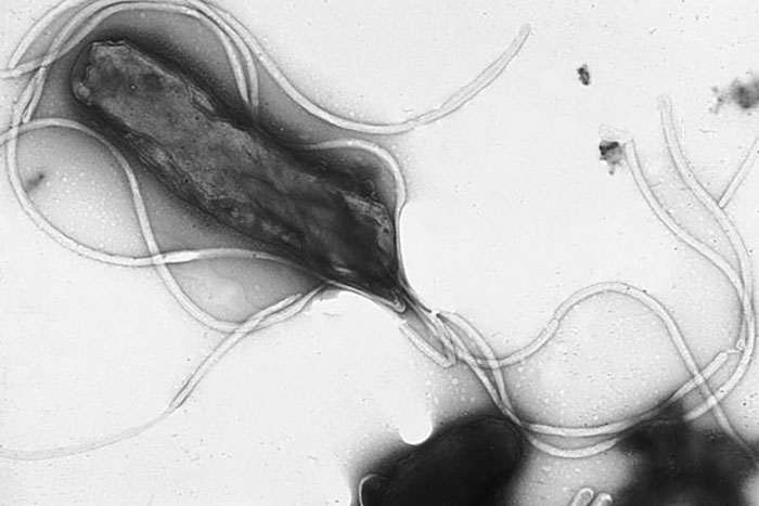 the helicobacter pyloris way of life essay Helicobacter pylori, aka h pylori, is a type of bacteria which resides in our stomach to be specific, it is found in the mucus lining of the stomach and duodenum, but can also adhere to the cells lining the stomach.